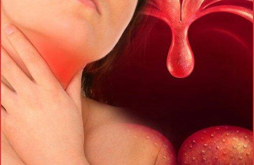 DEPOIMENTO – HEMORROIDAS E FARINGITE